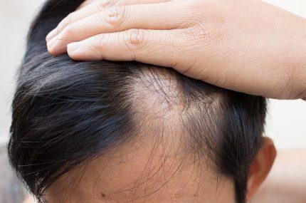 utrata włosów u mężczyzny bruneta