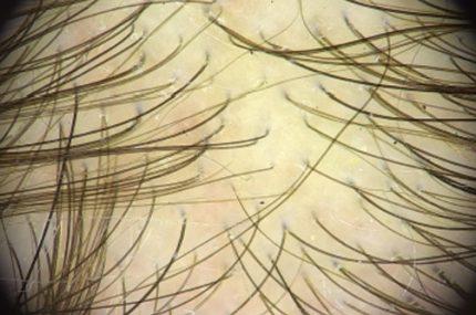 trichoskopia zdjęcie mikroskopijne